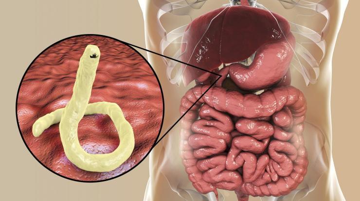 a genitális szemölcsök eltávolítása a belekben kerek féreg felnőtt székben