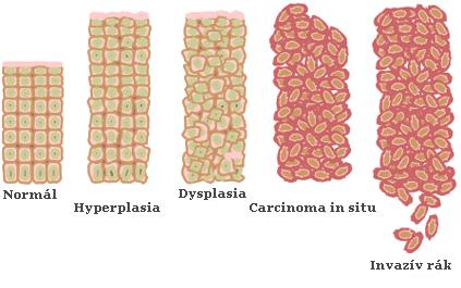 mennyi az enterobiosis genitális szemölcsök a megjelenés idején