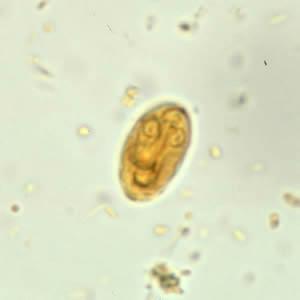 Giardia cdc gov