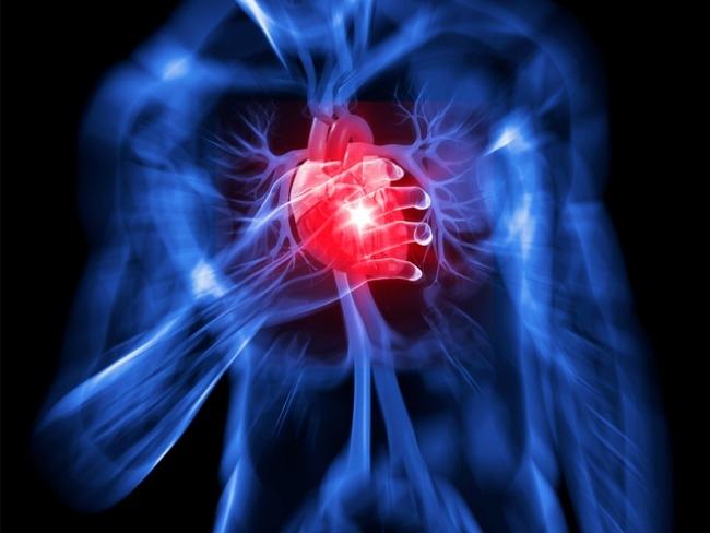 Mi a teendő szívinfarktus esetén?