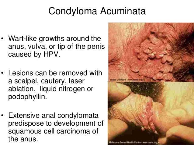 condyloma acuminata hiv légzési papillomatosis hogyan kell kezelni