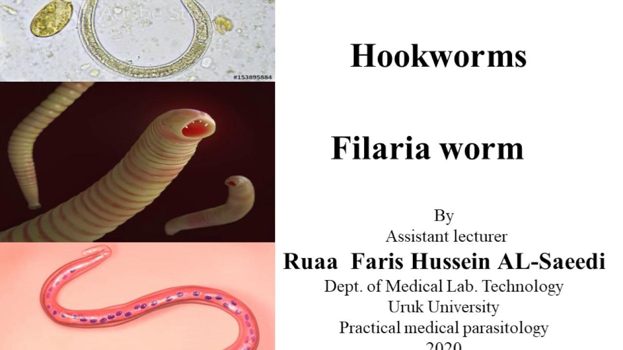 Mit kell venni a pinworms től - Eszközök a paraziták megelőzésére a testben
