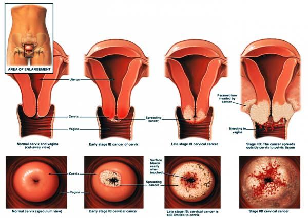 laphámsejtes karcinóma