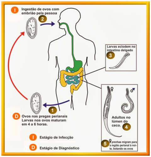 oxiurus a széklet tüneteiben emberi féreghajtó szuszpenzió