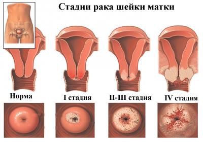 enterobiasis hatások Ayurvédikus vastagbél méregtelenítés