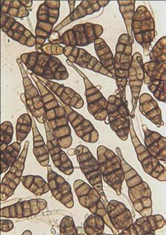 helminthosporium sativum vastagbél tisztító fórum
