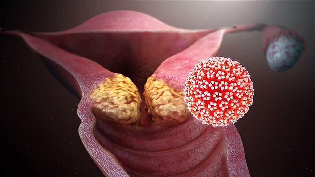 húgyúti vírus papilloma