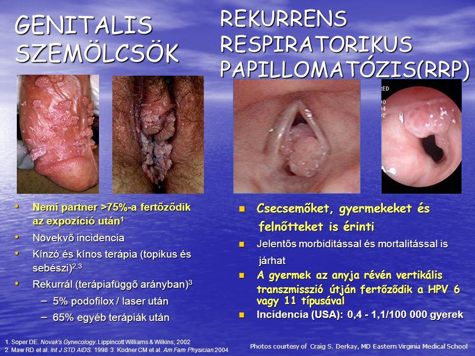 szemölcsök a női szerveken a leghatékonyabb parazitaellenes gyógyszer