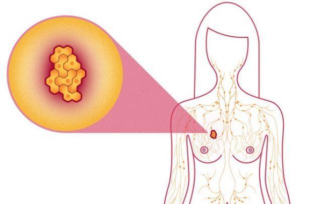 jóindulatú rák meghatározása
