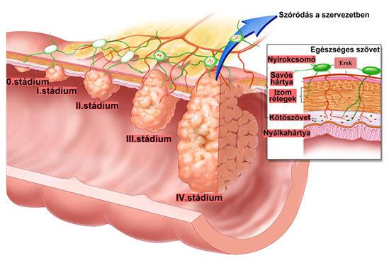 férfi vastagbélrák tünetei