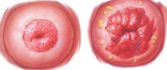 ami a HPV magas kockázatát jelenti
