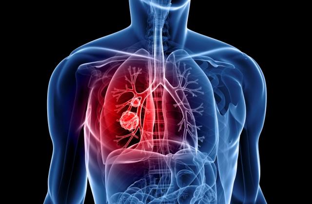 tüdőrák kora