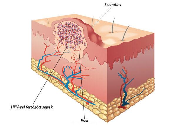 emberi papillomavírus hatása a bőrre