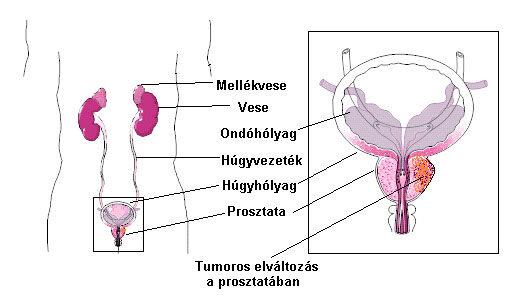 genitális hpv a kezeken