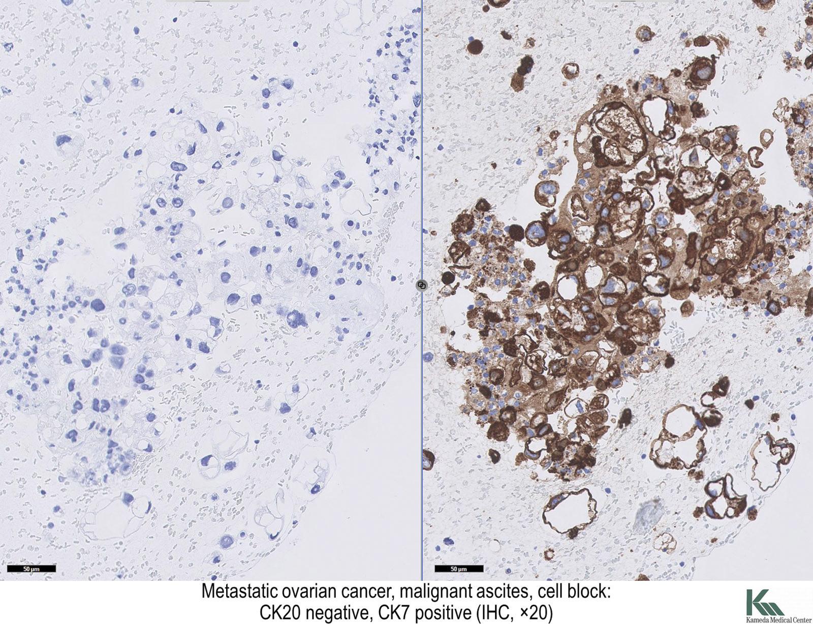 fordított papilloma hólyag ck20 emberi papillomavírus hogyan kell kezelni egy férfit