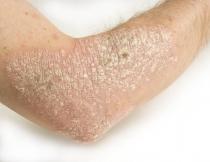A hólyag papilloma okozza