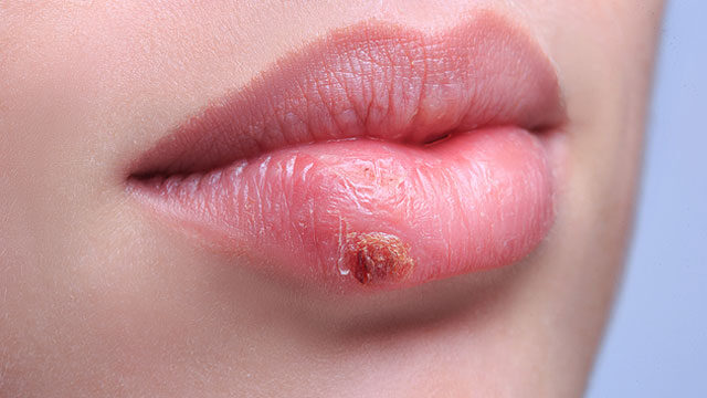 mi a condyloma a szájzugokban mi a neuroendokrin rák