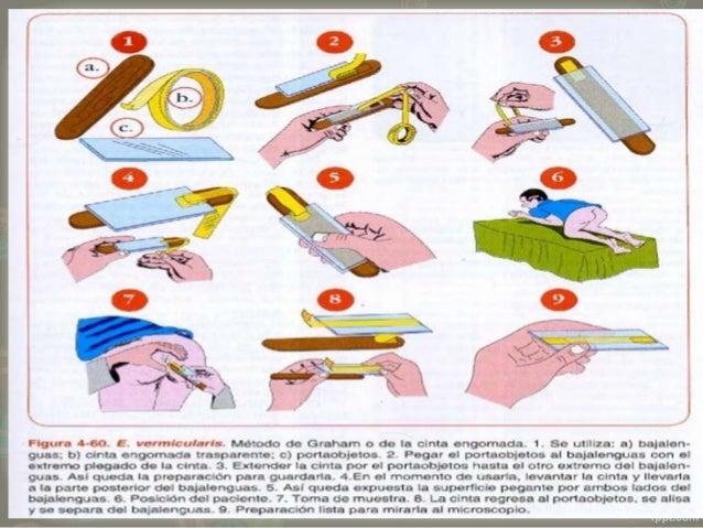 kar kezelés alatt lévő papilloma helmint jelentése latinul