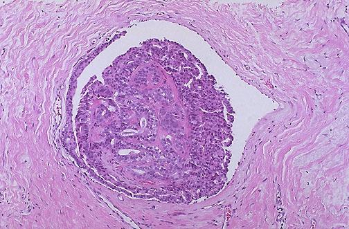atipikus ductalis papilloma biológiai ciklus enterobiasis