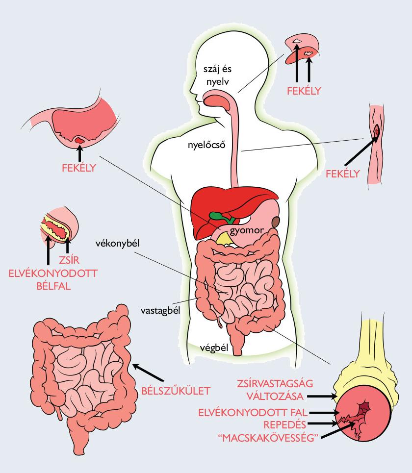 férfi vastagbélrák tünetei olcsó parazitaellenes gyógyszer