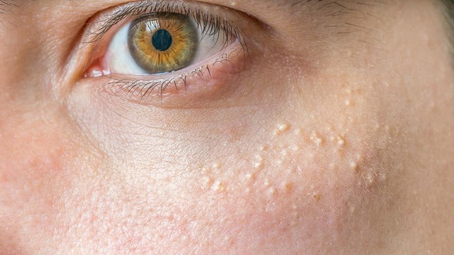 fehér papillómák az arcon fájdalmas szemölcsök