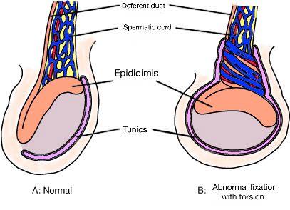 altatás a genitális szemölcsök elektrokoagulációjára instrumentális paraziták csengőhangja
