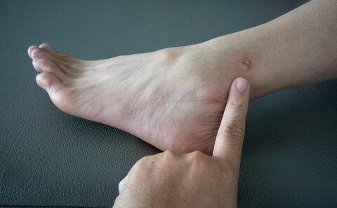 Az ótvar tünetei, szövődményei és kezelési lehetőségei