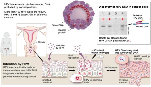 ami a 3. stádiumú rák sinus rák tünetei