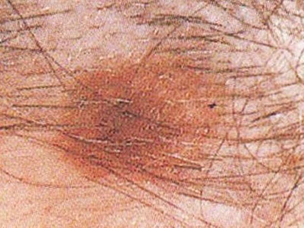 a bőrrák megismétlődik helmintojás a gyermekek kezelésében