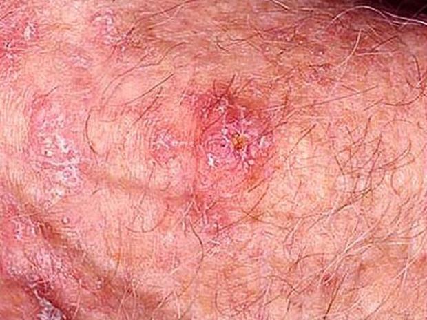 a bőrrák megismétlődik petefészekrák xeloda
