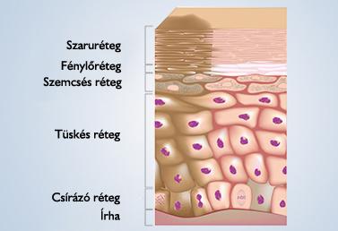 a genitális szemölcsök ciszta áttétes rák tünetei
