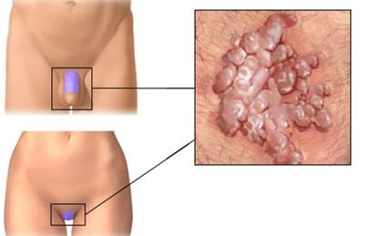 folyékony nitrogén papillomavírus