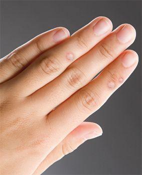a kezeken lévő szemölcsök genetikai