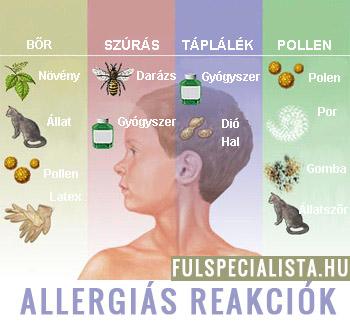 allergiás reakciók a helminthiasisra