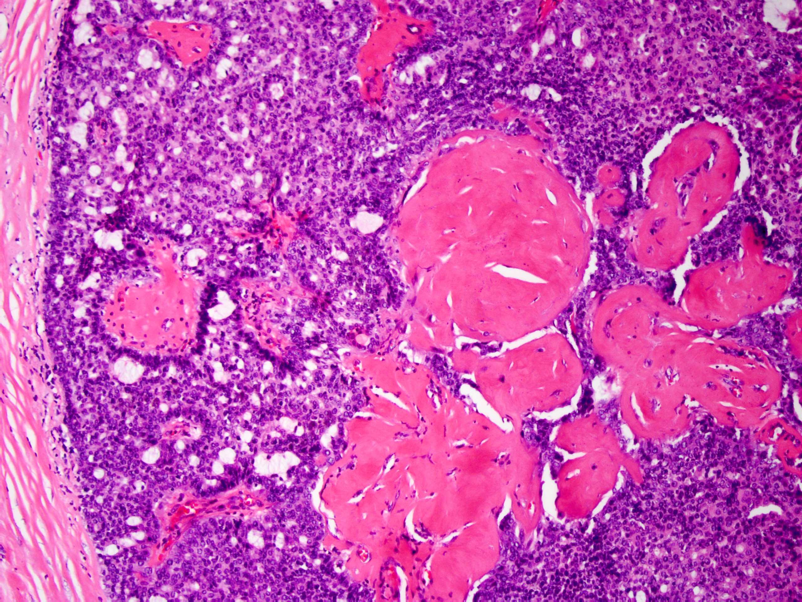 neuroendokrin rákra vonatkozó irányelvek