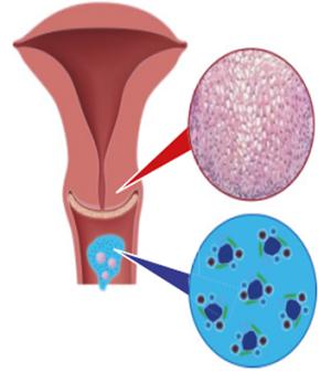 humán papillomavírus baktériumok férgek kezelése kisgyermekeknél