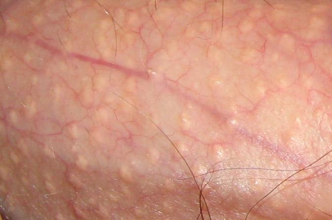 condyloma nőknél vestibularis papillomatosis kenőcs