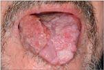 papillomavírus nyelvrák hogy néznek ki a kerékférgek