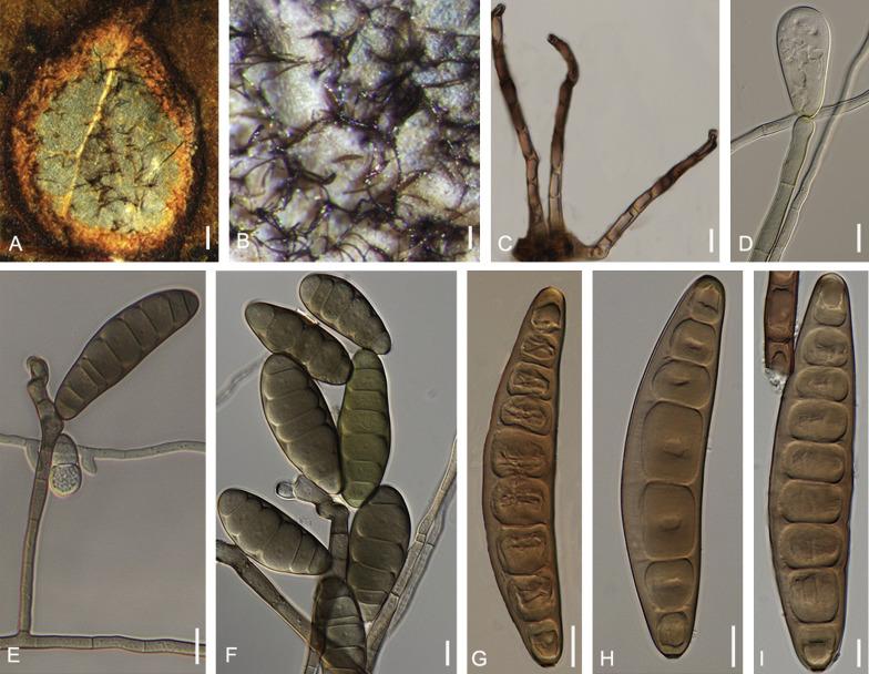 helminthosporium sativum parazita hangya