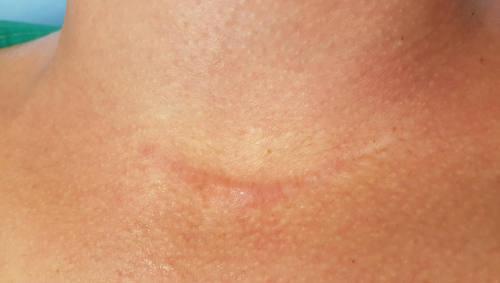 okozhat-e fájdalmat a hpv vírus viferon kenőcs papillómákból