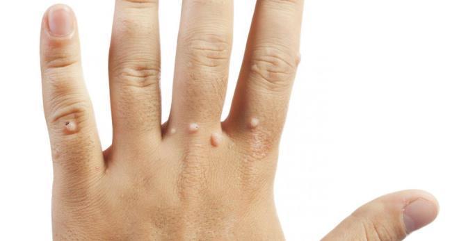 gyöngyök az emberek szívében giardia fertőzést okoz