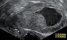 férgek kezelési tünetei terhesség alatt