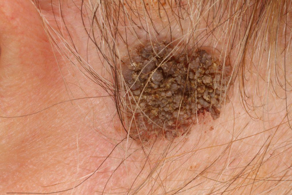 a szarvasmarha bőrének élőhelyének adaptálása