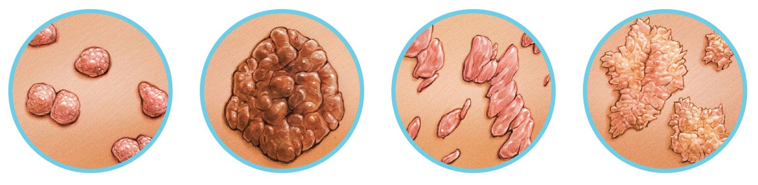 csatorna condyloma rák a nők tüneteiben