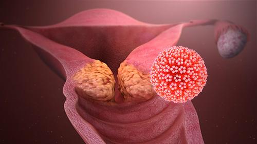 emberre szóló féreghajtó gyógyszerek áttekintése papillómák a torok kezelésére