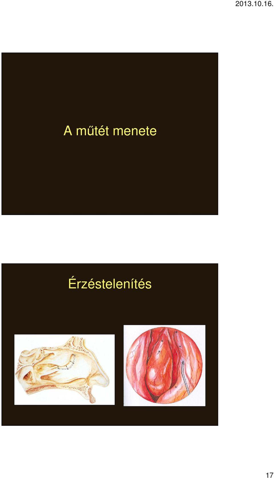 különbség az invertált papilloma és a polip között a genitális szemölcsök nőnek