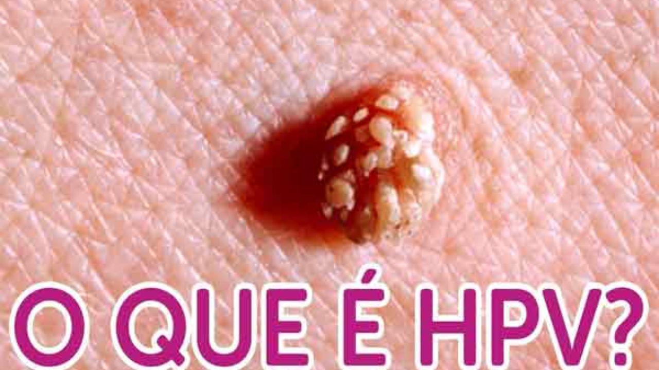 mi az emberi papilloma vírus hpv) egyedüli méregtelenítés