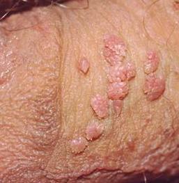 nyaki condyloma in
