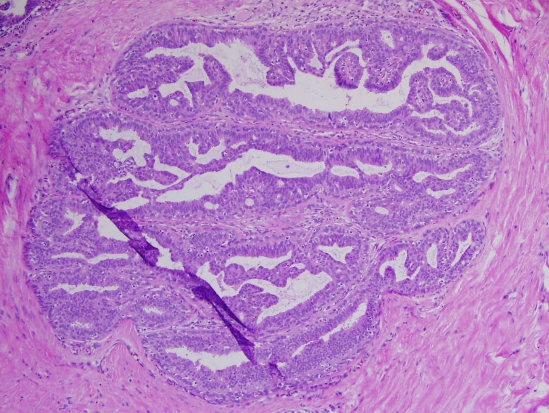 Papilloma virus uomo e grave