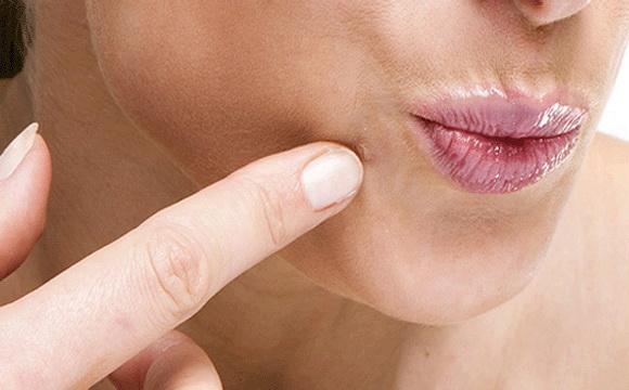 immunmoduláló gyógyszerek szemölcsök ellen